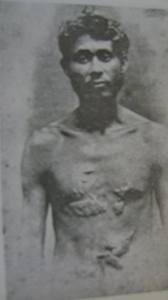 El héroe nacional Cayo Báez, salvajemente torturado como lo muestran las cicatrices que aparecen en su cuerpo.